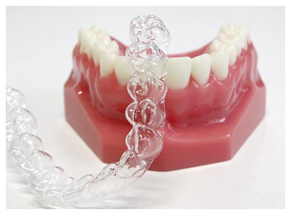 マウスピース矯正の特徴は、   ・ 着脱が可能で歯磨きがしやすい  ・痛みや違和感が従来の装置と比べ、軽減される 場合が多い  ・透明のため目立ちにくい  ・一日20時間以上着用  です。